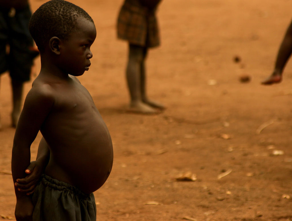 Why Malnutrition and Obesity Commonly happen at the same Time